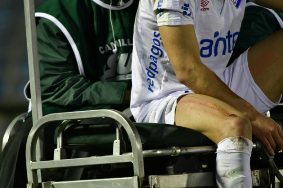 Así quedó la pierna de Jorge Fucile tras la durísima entrada de Guzmán Pereira. Foto: Gerardo Pérez
