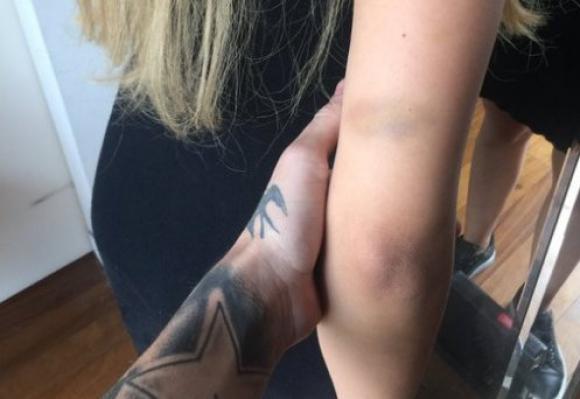 El brazo de Charlotte Caniggia retratado por Alexander (Foto: @alexcaniggia)