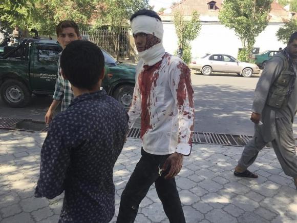 Un hombre herido tras la explosión de un coche bomba en Kabul. Foto: EFE