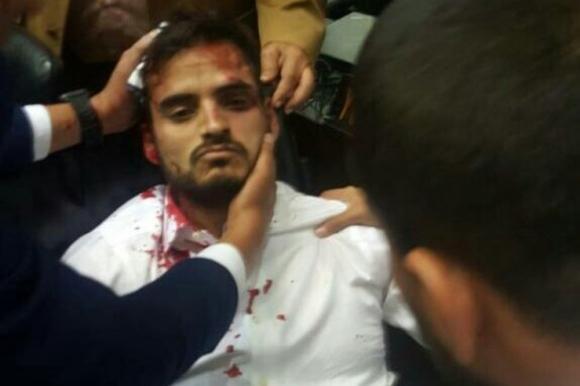 Diputado Armas herido. Foto: @ArmandoArmas / Twitter.
