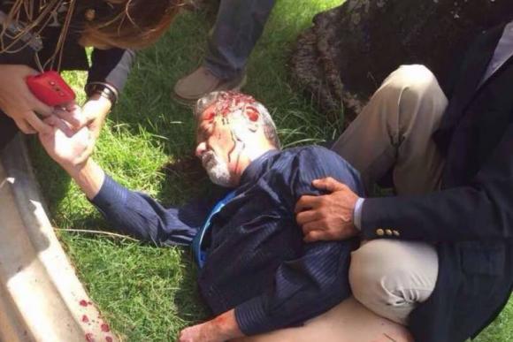Diputado De Grazia herido. Foto: El Nacional.