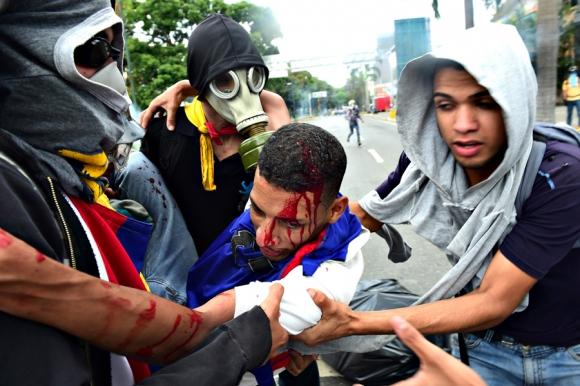 Otra jornada sangrienta en las calles de Venezuela. Foto: AFP
