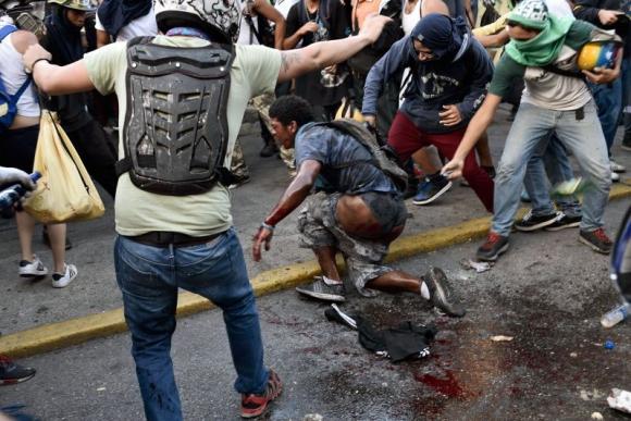 El joven intenta escapar y encapuchados se aproximan con encendedores. Foto: AFP.