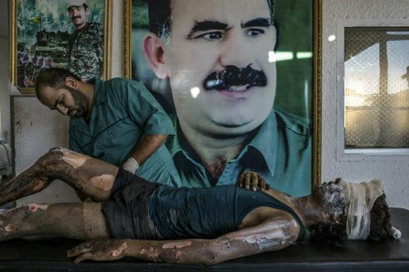 Primer premio en categoría Noticias. El fotógrafo Mauricio Lima retrata la atención de un médico que cura las quemaduras a un joven de 16 años miembro del Estado Islámico frente en Kurdistán. Foto: vía Reuters