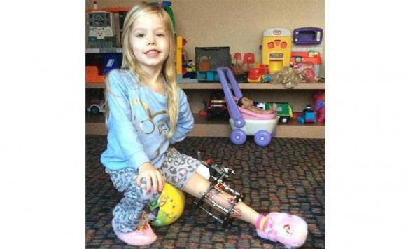 Fue operada y su madre tuvo que romperle la pierna mediante un sistema mecánico por 4 meses. Foto: PA Real Life.