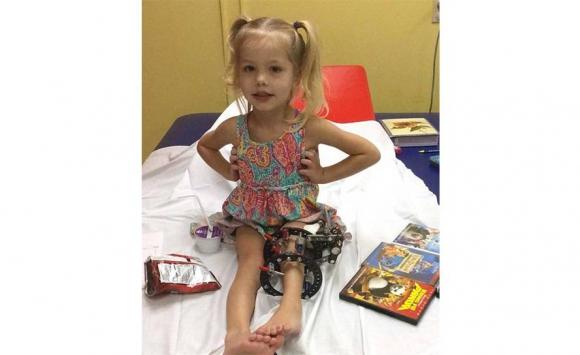 Poco a poco, la pierna izquierda de la niña comenzó a crecer con normalidad. Foto: PA Real Life.