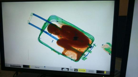 La imagen del escáner que reveló la presencia del menor. Foto: EFE.
