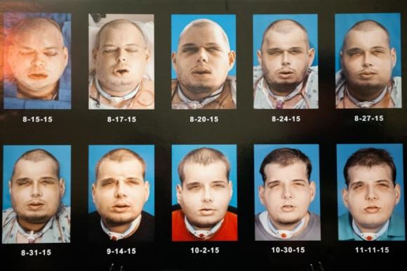 La evolución del rostro de Patrick Hardison. Foto: AFP.