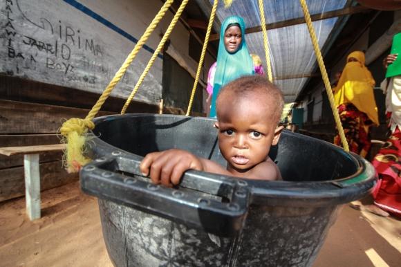Pesaje de un niño en la clínica pediátrica de Médicos Sin Fronteras (MSF). Foto: Tom Maruko / MSF