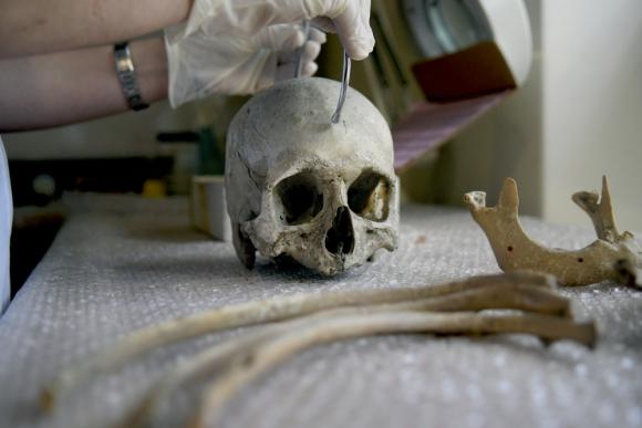 Hallaron un cráneo humano y huesos en una casa de Aires Puros ...
