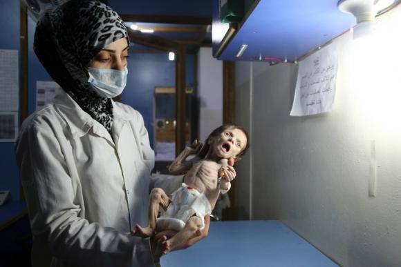 Hospital de Guta: Sahar, de 34 días, murió el domingo. Foto: AFP