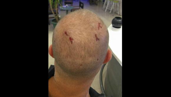 El hombre subió a Facebook una foto con las heridas que sufrió. Foto: Facebook Pablo Rotkier