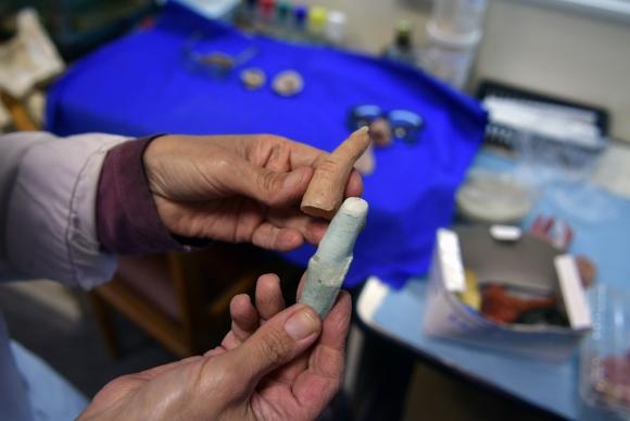 """""""El paciente debe hacer el duelo  por la parte que perdió antes de aceptar una prótesis"""", dice la psicológa Flavia Sartorio."""