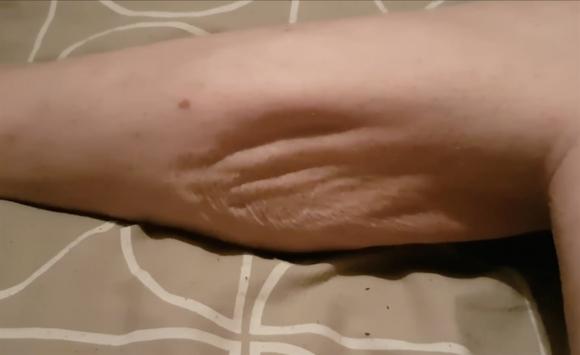tengo la pierna hinchada y dura