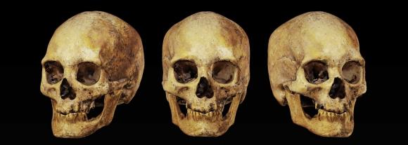 El cráneo prehistórico que será reconstruido. Foto: Museo de Arte Precolombino e Indígena