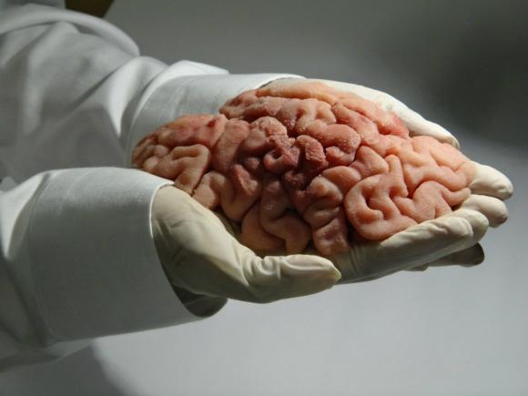 Réplica de un cerebro humano hecha por Lazarus 3D. Foto: Efe.
