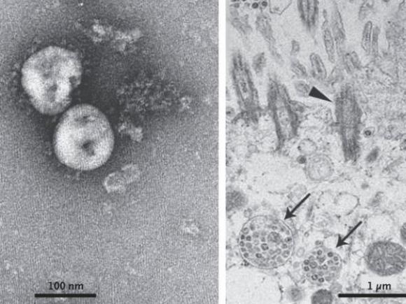 Imagen por microscopio del coronavirus 2019-nCoV. A la izquierda, aislado, con sus picos proteicos que le sirven para adherirse a las células. A la derecha, ya en el interior de las células. Foto: The New England Journal of Medicine
