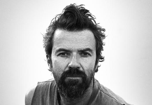 Pau Donés, cantante de Jarabe de Palo. Foto: EFE.