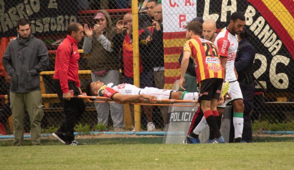 Bruno Foliados sufrió fractura de cráneo