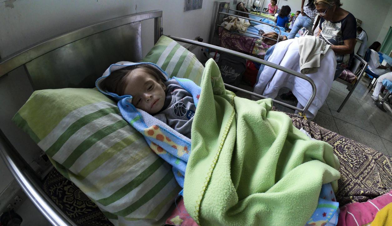 8f1100a5 Niños desnutridos, el rostro más desgarrador de la crisis venezolana ...