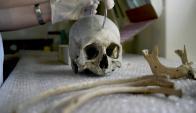 Los 208 huesos del cuerpo humano se diferencias del resto de los animales, por las dudas, los antropólogos comparan. Foto: F. Ponzetto