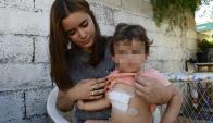 El bebé de 15 meses sufrió dos cortes en el pecho en un intento de rapiña. Foto: M. Bonjour