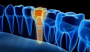 implantes, columna de los dientes