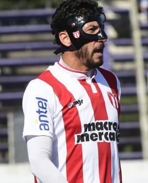 Juan Manuel Olivera con la protección en su rostro. Foto: Marcelo Bonjour